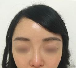 眉毛为什么会稀疏 哪些人可以进行眉毛种植术
