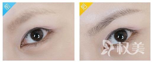 眉毛为什么会稀少呢 武汉仁爱医院眉毛种植需要多少钱