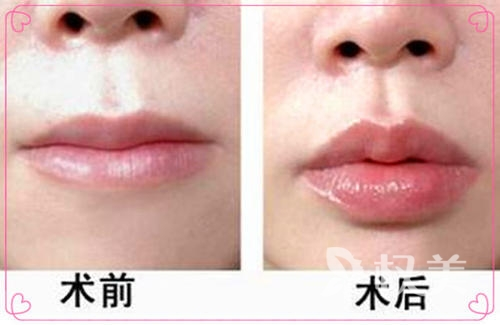 注射胶原蛋白丰唇多少钱 可以使双唇散发健康的光彩