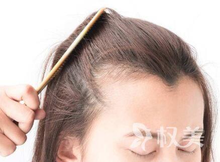西安科发源植发发际线 甩掉大额头烦恼