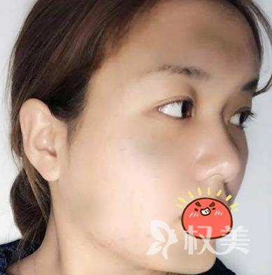 现在的脸型是我想要的效果 在深圳南山区人民医院整形科做自体脂肪丰面颊