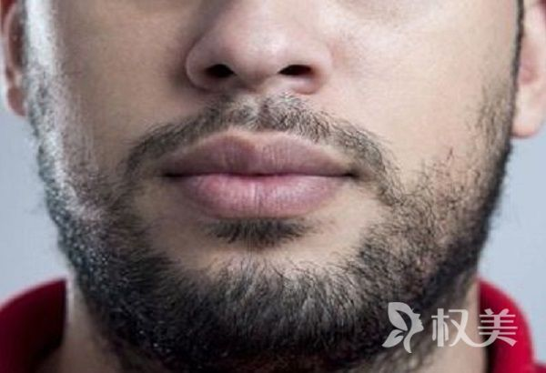 胡须种植会有不良反应吗 植胡须的优点有哪些