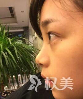 济南市第一人民医院整形科鼻综合手术 改变的不只是鼻子 还有人生