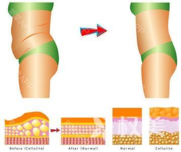臀部减肥的方法有哪些 臀部吸脂术达到塑形和防止皮肤松弛目的