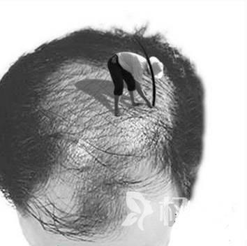 头发能治好吗 广州倍生植发整形医院头发加密手术安全吗
