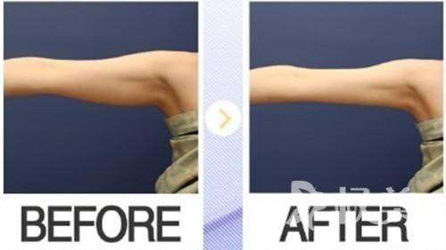 魔鬼身材粗壮手臂甚是可惜 纤纤玉手从手臂吸脂开始