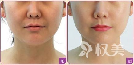 v脸提拉也叫面部线雕术 功效多多效果惊艳
