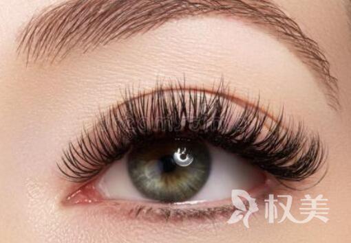成都青羊丝缘种植睫毛 让大眼睛更闪亮