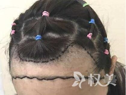 额头脱发怎么办 北京中山医院发际线种植效果自然吗