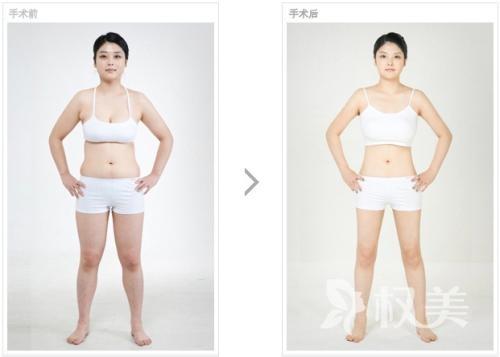 重庆吸脂减肥整形手术有哪几种 按部位收费2000-8000元一个部位