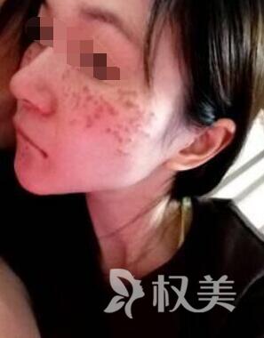 北京整形美容整形医院激光祛斑 摆脱斑点束缚天使面容