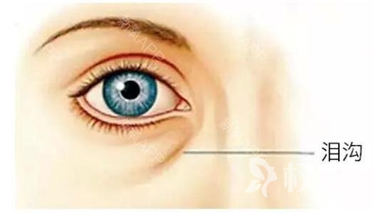 自体脂肪丰泪沟纹修复岁月泪痕 不做泪美人