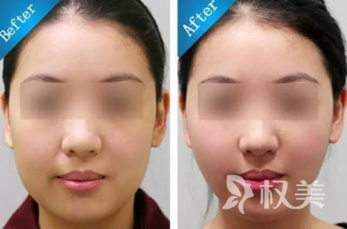 有双下巴怎么办 下巴吸脂术让你美得更精致