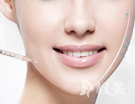 怎样才能消除双下巴 不同类型选择手术方法不同