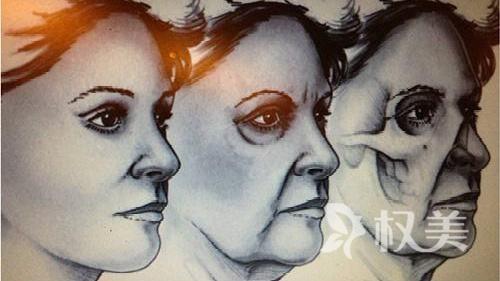 面部除皱术的分类有哪些呢 皱纹的分类有哪些