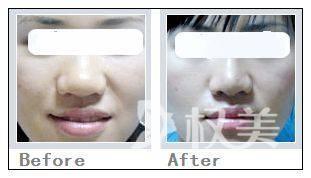 怎样缩小鼻翼 协调并有美感的鼻子这么拥有