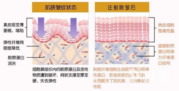 注射除皱的手术方式有哪些 注射除皱的手术特点有哪些呢