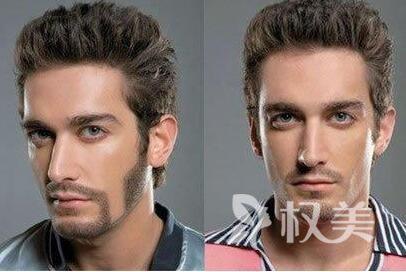 大家千万不要毛囊移植 北京约翰金清木胡须种植有风险吗