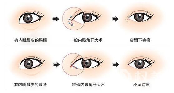 开内眼角是怎么样定义的 开内眼角的手术原则有哪些