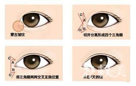 开外眼角手术增大双眼 效果自然差不了