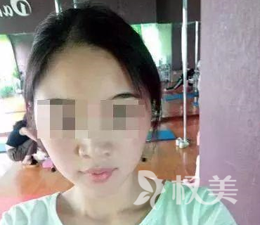 广元刘女士花3万元做整容手术 没有让自己变美而是毁容了