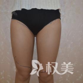 终于摆脱不忍直视的大腿 我在黑龙江中西医结合医院整形科做了大腿吸脂术