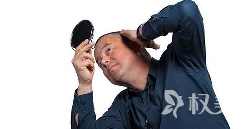 如何摆脱大脑门的烦恼 头发种植效果好不好