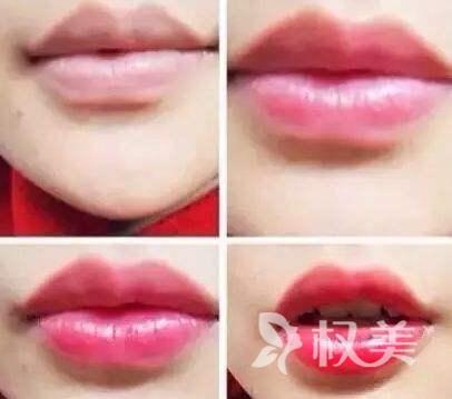 紋唇的材料該怎么樣選擇呢 紋唇給嘴唇上一抹不一樣的色彩