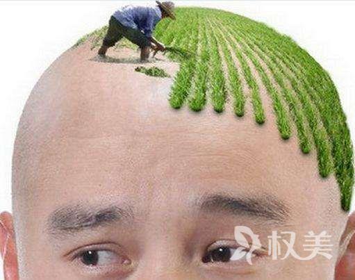发际线后移怎么办 发际线种植拯救你的大额头