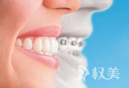畸形牙齿矫正方法有哪些 多少钱?需要多久