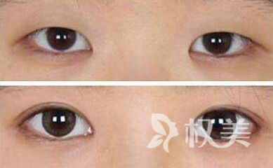 整形医院割双眼皮都有哪些方法 注意定期复查饮食清淡