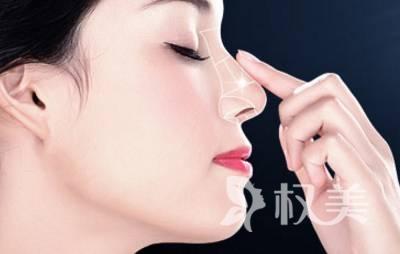 整形医院隆鼻安全吗 假体隆鼻有哪些优点值得选择