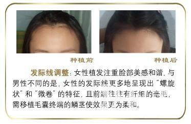 何首乌治疗脱发效果好吗  种植发际线需要注意什么