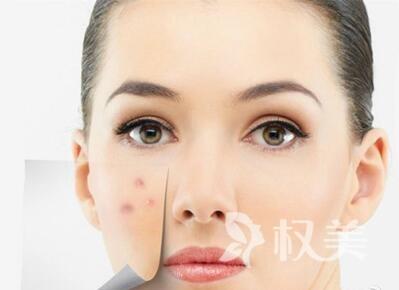 爱贝芙注射美容安全吗 能保持皮下胶原蛋白的动态平衡
