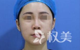 膨体隆鼻修复 安全整形 让美丽再来一次