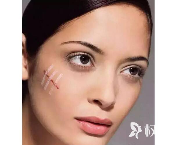 激光治疗凹陷性疤痕 皮肤80%获得与正常皮肤同样弹性和光泽