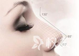 驼峰鼻整形的安全性怎么样呢 驼峰不再属于鼻子
