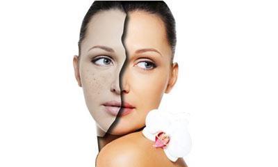皮肤科祛斑用激光效果好不好 平时多吃什么对祛斑好