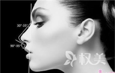 鼻头如何缩小 鼻头缩小改善你的蒜鼻头