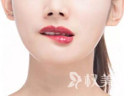 益阳胶原蛋白注射丰唇价格 做美丽女人