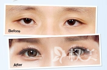 开眼角的安全性怎么样呢 开眼角真的可以增大眼睛吗