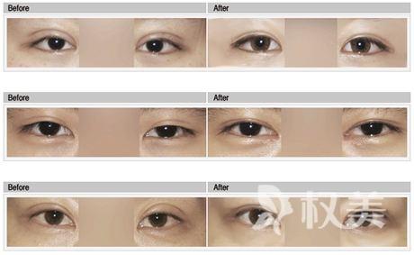 全切雙眼皮失敗后的表現有哪些 全切雙眼皮失敗后怎么樣修復呢