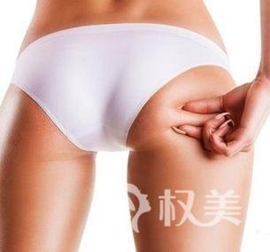 怎么提臀效果好 臀部吸脂打造迷人翘臀