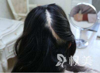 头发如何种植 疤痕植发过程是怎样的