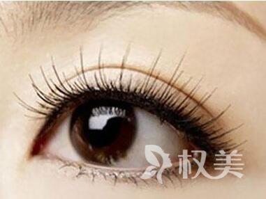 广州植头发哪家医院好 睫毛种植价格是多少