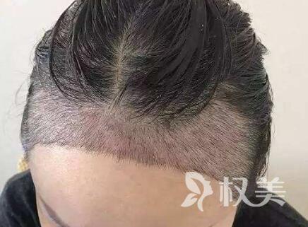 上海植头发多少钱 发际线种植贵不贵