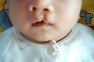 唇腭裂修复的效果怎么样呢 唇腭裂不是天灾人祸而是它
