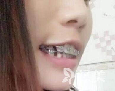 长达两年矫正等待 牙齿矫正果然没有让我失望