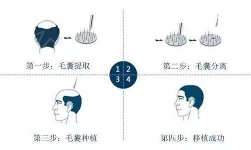 什么是植发术 胡须种植的成活率是多少