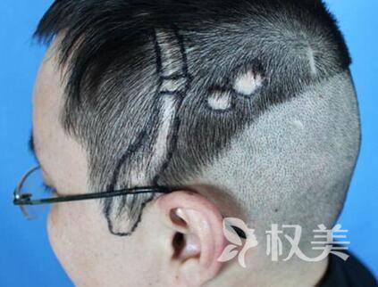 头发掉的很厉害怎么办 疤痕植发优势有哪些